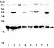 Western blot testing of human 1) HeLa, 2) MCF7, 3) COLO320, 4) HepG2, 5) placenta, 6) A549, 7) SKOV3, and 8) PANC-1 cell lysate with CBX3 antibody at 0.5ug/ml. Predicted molecular weight ~21 kDa.