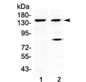 Western blot testing of 1) mouse liver and 2) human A431 lysate with FBXL11 antibody at 0.5ug/ml. Predicted molecular weight ~133 kDa.
