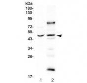 Western blot testing of human 1) SGC-7901 and 2) SK-OV-3 cell lysate with SKP2 antibody at 0.5ug/ml. Predicted molecular weight ~48 kDa.