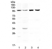 Western blot testing of 1) human HeLa, 2) human MCF7, 3) rat skeletal muscle and 4) mouse skeletal muscle lysate with DYRK1A antibody at 0.5ug/ml. Predicted molecular weight ~85 kDa, observed here at ~100 kDa.