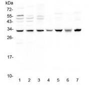 Western blot testing of 1) human MCF7, 2) A549, 3) SGC-7901, 4) rat brain, 5) rat heart, 6) mouse brain and 7) mouse heart lysate with SDHB antibody at 0.5ug/ml. Predicted molecular weight ~32 kDa.