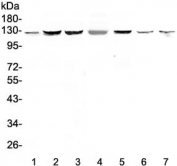 Western blot testing of human 1) HeLa, 2) HepG2, 3) PANC-1, 4) SK-OV-3, 5) COLO320, 6) rat testis and 7) mouse testis tissue with SMC6 antibody at 0.5ug/ml. Predicted molecular weight ~126 kDa.