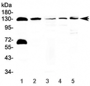 Western blot testing of 1) human 22RV1, 2) human Jurkat, 3) rat pancreas, 4) mouse pancreas and 5) mouse NIH3T3 lysate with NEDD4-2 antibody at 0.5ug/ml. Predicted molecular weight: 112-125 kDa.