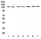 Western blot testing of human 1) HeLa, 2) COLO320, 3) A549, 4) SK-OV-3, 5) A431, 6) rat brain and 7) mouse brain lysate with PERK antibody at 0.5ug/ml. Predicted molecular weight ~125 kDa, observed here at ~140 kDa.
