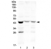 Western blot testing of human 1) MCF7, 2) COLO320 and 3) HepG2 cell lysate with SFTPB antibody at 0.5ug/ml. Predicted molecular weight ~42 kDa.
