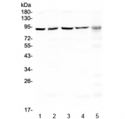 Western blot testing of human 1) HeLa, 2) A549, 3) 293T, 4) MCF7 and 5) 22RV1 cell lysate with PRDM1 / BLIMP1 antibody at 0.5ug/ml. Predicted molecular weight: ~92 kDa.