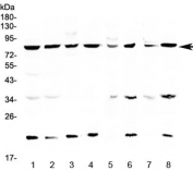 Western blot testing of human 1) HeLa, 2) MCF7, 3) COLO320, 4) U-87 MG, 5) rat brain, 6) rat liver, 7) mouse brain and 8) mouse liver lysate with MRE11 antibody at 0.5ug/ml. Predicted molecular weight ~81 kDa.