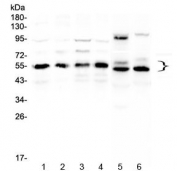 Western blot testing of human 1) HeLa, 2) COLO320, 3) A431, 4) MCF7, 5) rat heart and 6) mouse heart lysate with RXRA antibody at 0.5ug/ml. Predicted molecular weight: ~51 kDa but routinely observed at 54~60 kDa.