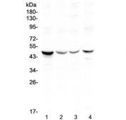 Western blot testing of human 1) HeLa 2) COLO320, 3) SW620 and 4) HepG2 lysate with Caspase 4 antibody at 0.5ug/ml. Expected molecular weight ~43 kDa (precursor), ~30 kDa (pro domain + large subunit), ~20 kDa (large subunit).