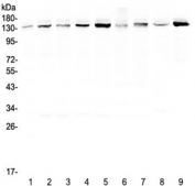 Western blot testing of human 1) HeLa, 2) 22RV1, 3) A431, 4) HepG2, 5) HepG2, 6) SGC-7901, 7) A549, 8) rat brain and 9) mouse testis lysate with USP7 antibody at 0.5ug/ml. Predicted molecular weight ~128 kDa, observed at ~135 kDa.