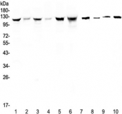 Western blot testing of human 1) HeLa, 2) placenta, 3) COLO-320, 4) HepG2, 5) SGC-7901, 6) Jurkat, 7) rat stomach, 8) mouse skeletal muscle, 9) mouse stomach and 10) mouse brain lysate with IDE antibody at 0.5ug/ml. Predicted molecular weight ~118 kDa.