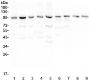 Western blot testing of human 1) HeLa, 2) placenta, 3) HepG2, 4) SGC-7901, 5) 22RV1, 6) rat lung, 7) mouse lung, 8) mouse testis and 9) mouse ovary with RALBP1 antibody at 0.5ug/ml. Predicted molecular weight ~76 kDa, observed molecular weight: 90-95 kDa.