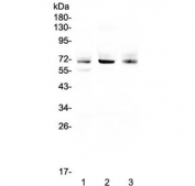Western blot testing of human 1) A549, 2) SGC-7901 and 3) U-2 OS cell lysate with Bestrophin 1 antibody at 0.5ug/ml. Predicted molecular weight ~68 kDa.