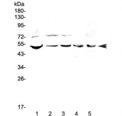 Western blot testing of human 1) PANC-1, 2) 22RV1, 3) COLO-320, 4) SW620 and 5) mouse SP20 lysate with ESRRG antibody at 0.5ug/ml. Predicted molecular weight ~51 kDa.