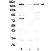 Western blot testing of human 1) HeLa, 2) PANC-1 and 3) 22RV1 cell lysate with SLK antibody at 0.5ug/ml. Predicted molecular weight ~143 kDa, routinely observed at 200-220 kDa.