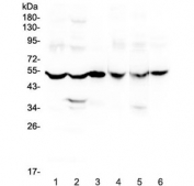 Western blot testing of rat 1) brain, 2) liver, 3) small intestine and mouse 4) brain, 5) liver and 6) small intestine lysate with GDA antibody at 0.5ug/ml. Predicted molecular weight ~51 kDa.