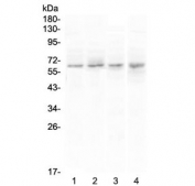 Western blot testing of human 1) PANC-1, 2) U-87 MG, 3) COLO-320 and 4) SGC-7901 cell lysate with CCKBR antibody at 0.5ug/ml. Predicted molecular weight ~48 kDa, but can be observed at 68-97 kDa.