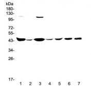 Western blot testing of human 1) HeLa, 2) placenta, 3) COLO-320, 4) SW620, 5) MDA-MB-231, 6) rat brain and 7) mouse brain lysate with CKB antibody at 0.5ug/ml. Predicted molecular weight ~43 kDa.