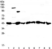 Western blot testing of rat 1) liver, 2) testis, 3) stomach, 4) thymus and human 5) COLO-320, 6) HepG2, 7) 22RV1, 8) PANC-1 and 9) SGC-7901 lysate with Caspase 4 antibody at 0.5ug/ml. Expected molecular weight ~43 kDa (precursor), ~30 kDa (pro domain + large subunit), ~20 kDa (large subunit).