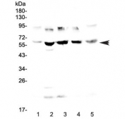 Western blot testing of human 1) HeLa, 2) placenta, 3) MCF7, 4) HepG2 and 5) PANC-1 lysate with Steroid sulfatase antibody at 0.5ug/ml. Predicted molecular weight ~65 kDa.
