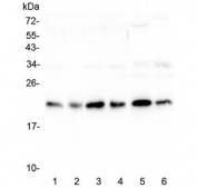 Western blot testing of human 1) HeLa, 2) placenta, 3) HepG2, 4) MCF7, 5) mouse testis and 6) mouse brain lysate with RKIP antibody at 0.5ug/ml. Predicted molecular weight ~21 kDa.