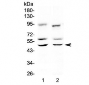 Western blot testing of 1) rat brain and 2) mouse brain lysate with CAMK2A antibody at 0.5ug/ml. Predicted molecular weight: ~54 kDa. An additional ~65 kDa band is often observed.