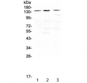 Western blot testing of human 1) HeLa, 2) SGC-7901 and 3) THP-1 cell lysate with TrkA antibdoy at 0.5ug/ml. Expected molecular weight: 85~140 kDa depending on glycosylation level.