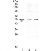 Western blot testing of 1) human SGC-7901, 2) rat heart and 3) mouse heart lysate with TPH1 antibody at 0.5ug/ml. Predicted molecular weight ~51 kDa.