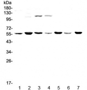 Western blot testing of human 1) HeLa, 2) MDA-MB-453, 3) Jurkat, 4) HepG2, 5) SK-OV-3, 6) PANC-1 and 7) mouse thymus lysate with CHRNA3 antibody at 0.5ug/ml. Predicted molecular weight ~57 kDa.
