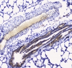 IHC testing of FFPE rat lung tissue with Betacellulin antibody at 1ug/ml. Required HIER: steam section in pH6 citrate buffer for 20 min and allow to cool prior to staining.