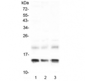 Western blot testing of 1) rat liver, 2) rat RH35 and 3) mouse liver lysate with FABP1 antibody at 0.5ug/ml. Predicted molecular weight ~14 kDa.