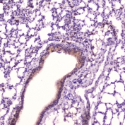 IHC testing of FFPE mouse lung tissue with Leptin antibody at 2ug/ml. HIER: boil tissue sections in pH6, 10mM citrate buffer, for 10-20 min followed by cooling at RT for 20 min.