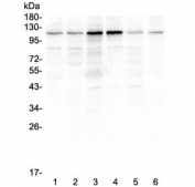 Western blot testing of human 1) HeLa, 2) COLO-320, 3) SW620, 4) K562, 5) A375 and 6) mouse smooth muscle (intestine) lysate with Smoothelin antibody at 0.5ug/ml. Predicted molecular weight ~99 kDa but commonly observed at ~110 kDa (long form).