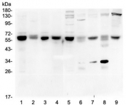 Western blot testing of 1) rat testis, 2) rat liver, 3) rat brain, 4) rat lung, 5) mouse testis, 6) mouse liver, 7) mouse brain, 8) mouse lung and 9) mouse HEPA1-6 lysate with ARSA antibody at 0.5ug/ml. Expected molecular weight: 53-63 kDa.