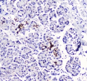 IHC staining of FFPE human pancreatic cancer with BTC antibody at 1ug/ml. HIER: boil tissue sections in pH6, 10mM citrate buffer, for 10-20 min followed by cooling at RT for 20 min.