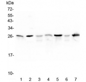 Western blot testing of 1) rat skeletal muscle, 2) rat lung and mouse 3) spleen, 4) skeletal muscle, 5) lung, 6) liver and 7) testis lysate with Hsp27 antibody at 0.5ug/ml. Predicted molecular weight: 23-27 kDa.