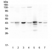 Western blot testing of human 1) HeLa, 2) placenta, 3) A549, 4) MCF7, 5) U-937, 6) U-2 OS and 7) Caco-2 lysate with ADA antibody at 0.5ug/ml. Predicted molecular weight ~41 kDa.
