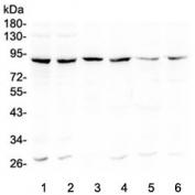 Western blot testing of human 1) Raji, 2) MCF7, 3) placenta, 4) A549, 5) Caco-2 and 6) U-2 OS lysate with Bcl6 antibody at 0.5ug/ml. Predicted molecular weight: 78~100 kDa.