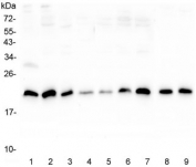 Western blot testing of human 1) placenta, 2) U-2 OS, 3) A431, 4) PC-3, 5) HL-60, 6) K562, 7) Caco-2, 8) rat lung and 9) mouse lung lysate with SRI antibody at 0.5ug/ml. Predicted molecular weight ~22 kDa, routinely observed at 22-29 kDa.