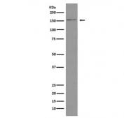 Western blot testing of human HeLa cell lysate with Brd4 antibody. Predicted molecular weight ~156 kDa (long form) and ~81 kDa (short form).