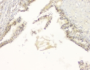 IHC staining of FFPE human renal cancer with APP antibody at 1ug/ml. HIER: boil tissue sections in pH6, 10mM citrate buffer, for 10-20 min and allow to cool before testing.