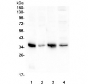 Western blot testing of 1) rat lung, 2) rat ovary, 3) mouse lung and 4) mouse ovary with Annexin A3 antibody at 0.5ug/ml. Predicted molecular weight ~36 kDa.