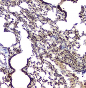 IHC staining of FFPE mouse lung with BAG6 antibody at 1ug/ml. HIER: boil tissue sections in pH6, 10mM citrate buffer, for 10-20 min and allow to cool before testing.