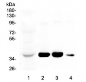 Western blot testing of 1) human liver, 2) rat liver, 3) mouse liver and 4) mouse testis lysate with AKR1D1 antibody at 0.5ug/ml. Predicted molecular weight ~37 kDa.