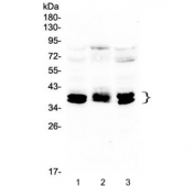 Western blot testing of human 1) HEK293, 2) PC-3 and 3) HeLa lysate with CXCR4 antibody at 0.5ug/ml. Predicted molecular weight ~40 kDa.