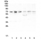 Western blot testing of 1) human PC-3, 2) human A549, 3) human HepG2, 4) rat ovary, 5) rat lung and 6) rat testis lysate with ARNTL2 antibody at 0.5ug/ml. Predicted molecular weight ~71 kDa.