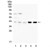 Western blot testing of 1) human placenta, 2) human PC-3, 3) human U-937, 4) rat spleen and 5) mouse spleen with ARPC1B antibody. Predicted molecular weight ~41 kDa.