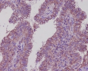 IHC staining of FFPE human thyroid carcinoma with ATP1A1 antibody. HIER: boil tissue sections in pH6, 10mM citrate buffer, for 10-20 min and allow to cool before testing.