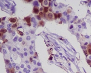 IHC staining of FFPE human breast cancer with S100A8 antibody. HIER: boil tissue sections in pH6, 10mM citrate buffer, for 10-20 min and allow to cool before testing.