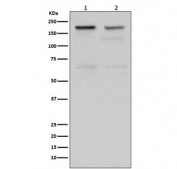 Western blot testing of human 1) HeLa and 2) Jurkat cell lysate with TOP2A antibody. Predicted molecular weight ~174 kDa.